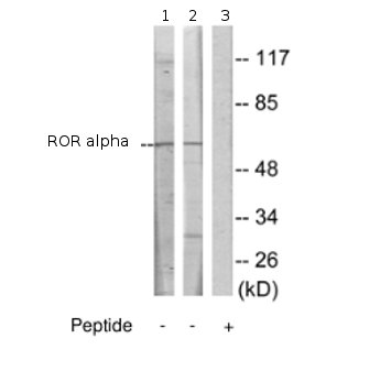 Western blot - Anti-ROR alpha antibody (ab70061)