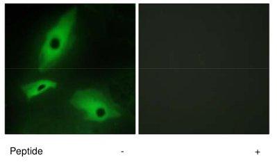 Immunocytochemistry/ Immunofluorescence - Anti-LTBR antibody (ab70063)