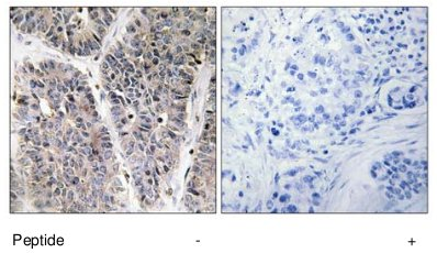 Immunohistochemistry (Formalin/PFA-fixed paraffin-embedded sections) - Anti-NBL1 antibody (ab70066)