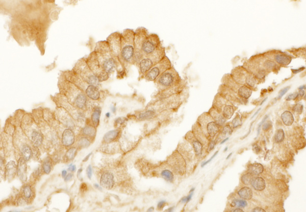 Immunohistochemistry (Formalin/PFA-fixed paraffin-embedded sections) - Anti-beta Actin antibody (ab70165)