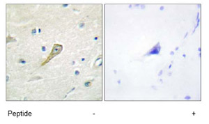 Immunohistochemistry (Formalin/PFA-fixed paraffin-embedded sections) - Anti-SEMA4A antibody (ab70178)