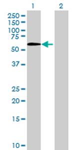 Western blot - Anti-LOXL1 antibody (ab70190)