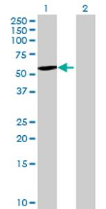 Western blot - Anti-Lumican antibody (ab70191)
