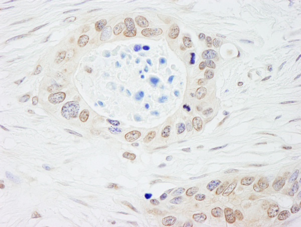 Immunohistochemistry (Formalin/PFA-fixed paraffin-embedded sections) - Anti-N myc interactor antibody (ab70209)