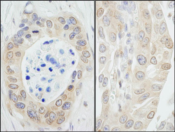 Immunohistochemistry (Formalin/PFA-fixed paraffin-embedded sections) - Anti-N myc interactor antibody (ab70210)