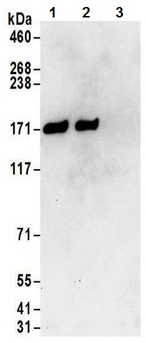 Immunoprecipitation - Anti-DIS antibody (ab70243)