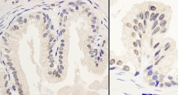 Immunohistochemistry (Formalin/PFA-fixed paraffin-embedded sections) - Anti-PPP1R10 antibody (ab70247)