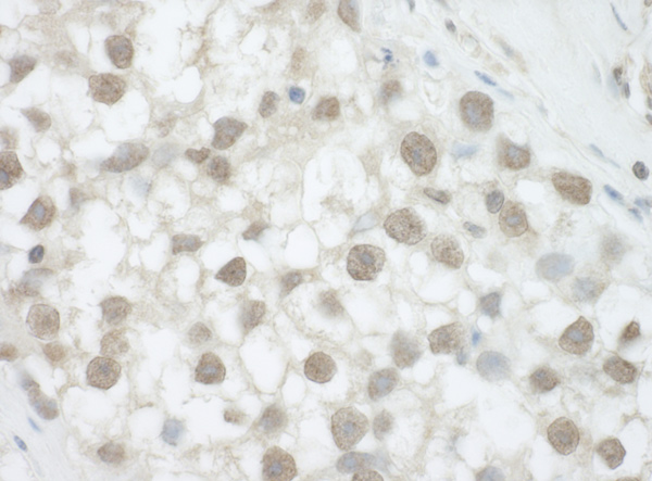 Immunohistochemistry (Formalin/PFA-fixed paraffin-embedded sections) - Anti-DHX36 antibody (ab70269)