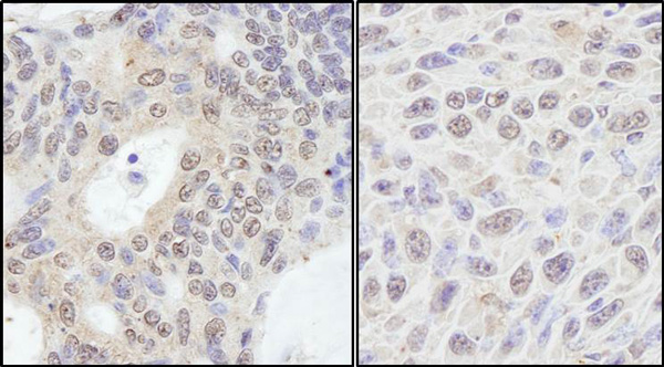 Immunohistochemistry (Formalin/PFA-fixed paraffin-embedded sections) - Anti-PRKRIR antibody (ab70333)