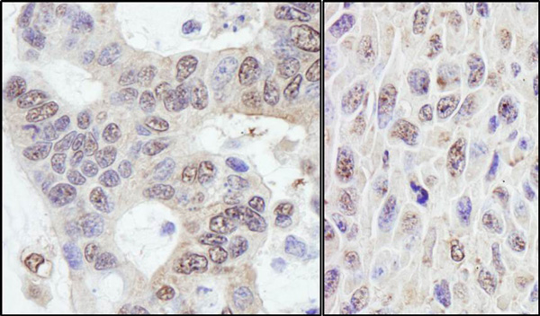 Immunohistochemistry (Formalin/PFA-fixed paraffin-embedded sections) - Anti-PRKRIR antibody (ab70334)
