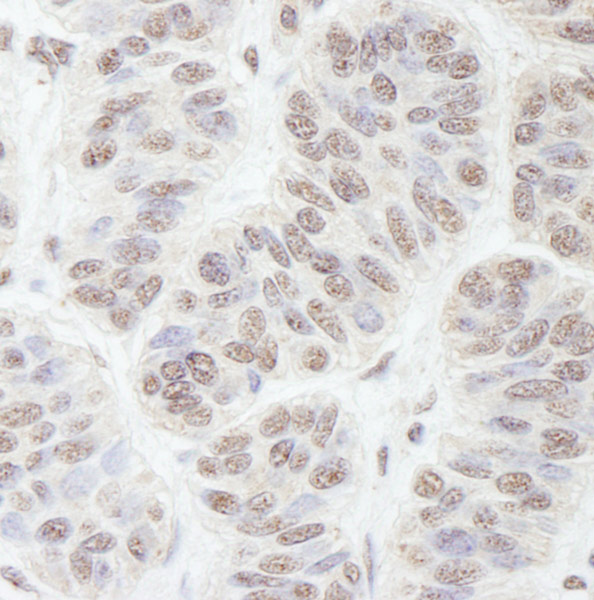 Immunohistochemistry (Formalin/PFA-fixed paraffin-embedded sections) - Anti-Nucleostemin antibody (ab70345)