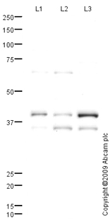 Western blot - Anti-Connexin 45 / GJA7 antibody (ab70365)