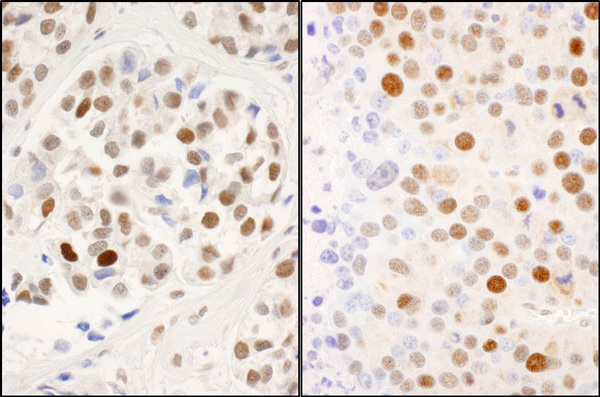 Immunohistochemistry (Formalin/PFA-fixed paraffin-embedded sections) - Anti-MCM2 (phospho S53) antibody (ab70367)
