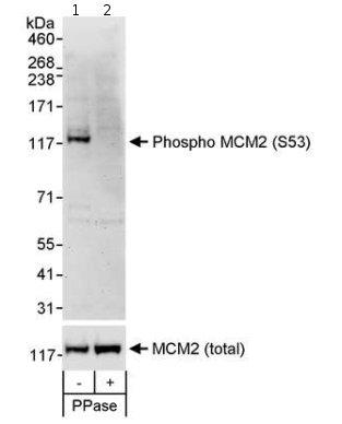 Western blot - Anti-MCM2 (phospho S53) antibody (ab70367)