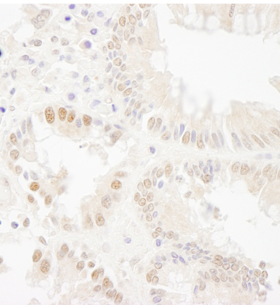 Immunohistochemistry (Formalin/PFA-fixed paraffin-embedded sections) - Anti-Bub1 antibody (ab70372)