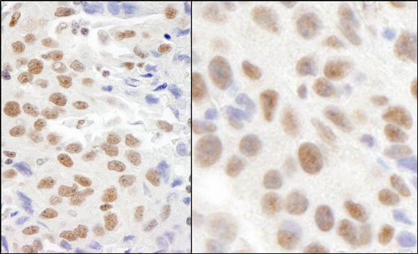Immunohistochemistry (Formalin/PFA-fixed paraffin-embedded sections) - Anti-FTSJD2 antibody (ab70387)
