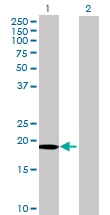 Western blot - Anti-CMTM3 antibody (ab70501)