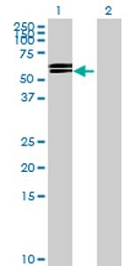 Western blot - Anti-GGT6 antibody (ab70516)