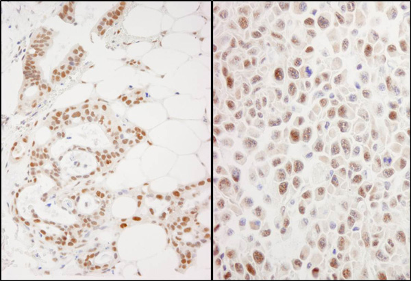 Immunohistochemistry (Formalin/PFA-fixed paraffin-embedded sections) - Anti-PRMT1 antibody (ab70543)