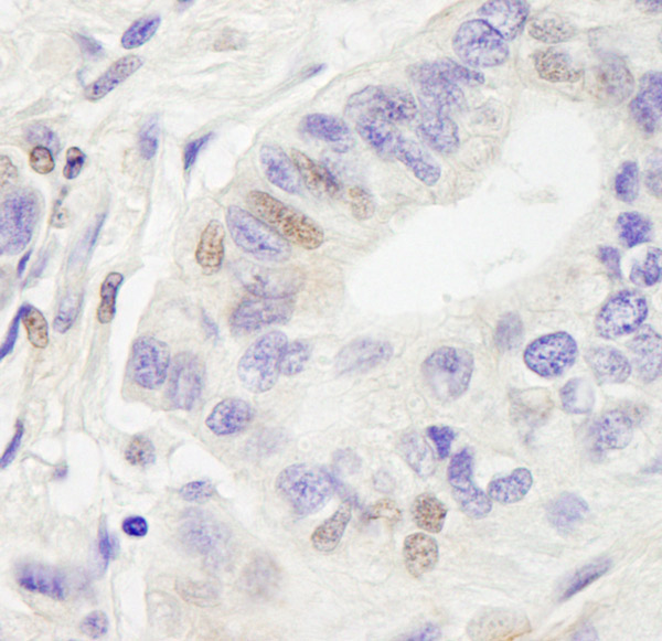 Immunohistochemistry (Formalin/PFA-fixed paraffin-embedded sections) - Anti-RC74 antibody (ab70586)