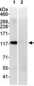 Immunoprecipitation - Anti-PP4R1 antibody (ab70624)