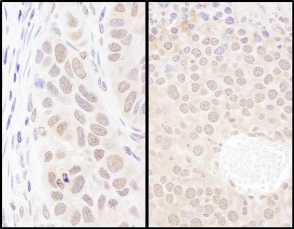 Immunohistochemistry (Formalin/PFA-fixed paraffin-embedded sections) - Anti-PSIP1 antibody (ab70641)