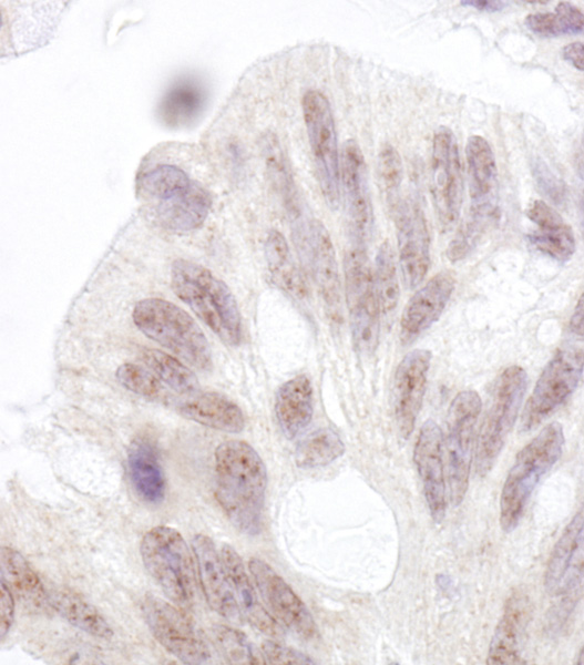 Immunohistochemistry (Formalin/PFA-fixed paraffin-embedded sections) - Anti-PNK antibody (ab70739)