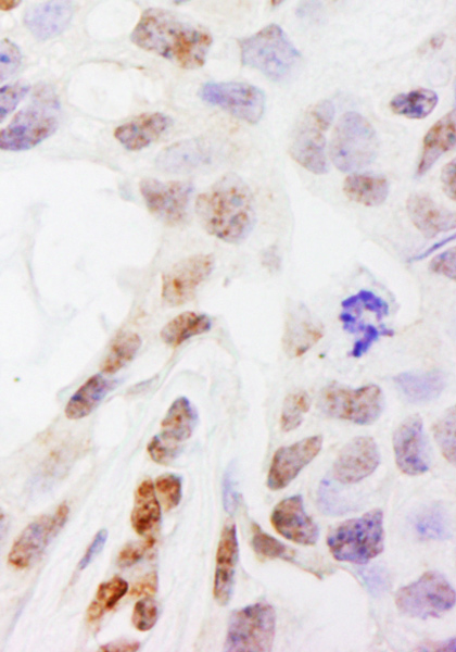 Immunohistochemistry (Formalin/PFA-fixed paraffin-embedded sections) - Anti-DHX38 antibody (ab70780)