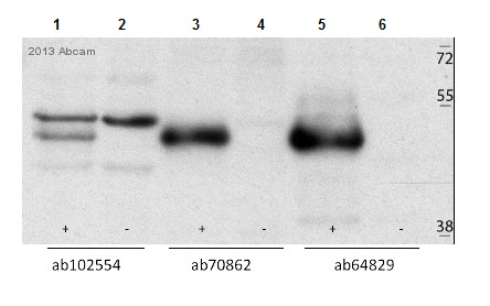 Western blot - Anti-Casein Kinase 1 gamma 2 antibody - C-terminal (ab70862)