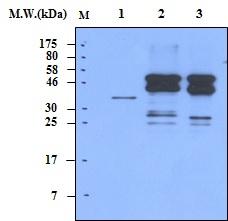 Western blot - Anti-RSK3 antibody [3C1] (ab70901)