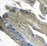 Immunohistochemistry (Formalin/PFA-fixed paraffin-embedded sections) - Anti-PI 3 Kinase catalytic subunit gamma antibody (ab70912)