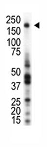 Western blot - Anti-RON antibody (ab70936)
