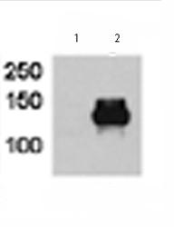 Western blot - Anti-HDAC9 antibody (ab70954)
