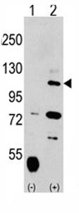 Western blot - Anti-USP15 antibody - Carboxyterminal end (ab71242)