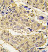Immunohistochemistry (Formalin/PFA-fixed paraffin-embedded sections) - Anti-Glutamyl Prolyl tRNA synthetase antibody - N-terminal (ab71253)
