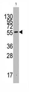 Western blot - Anti-Indoleamine 2, 3-dioxygenase antibody - Carboxyterminal end (ab71276)