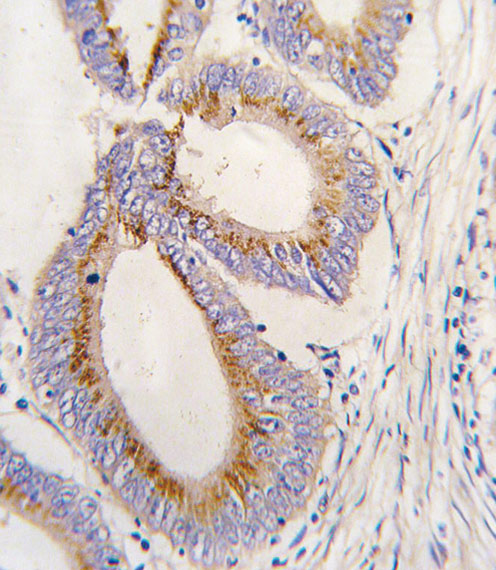 Immunohistochemistry (Formalin/PFA-fixed paraffin-embedded sections) - Anti-BMP11 antibody (ab71347)