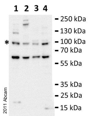 Western blot - Anti-PLK4 antibody (ab71394)