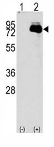 Western blot - Anti-NUAK2 antibody - Aminoterminal end (ab71398)