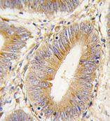 Immunohistochemistry (Formalin/PFA-fixed paraffin-embedded sections) - Anti-AKR1B1 antibody (ab71405)