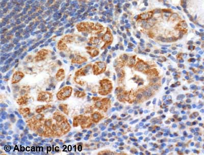 Immunohistochemistry (Formalin/PFA-fixed paraffin-embedded sections) - Anti-Aconitase 2 antibody (ab71440)