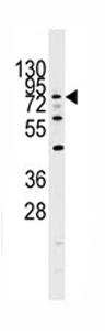 Western blot - DYRK1A antibody - Aminoterminal end (ab71464)