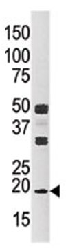 Western blot - Anti-NME3 antibody (ab71502)