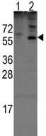 Western blot - Anti-Noelin antibody - N-terminal (ab71540)