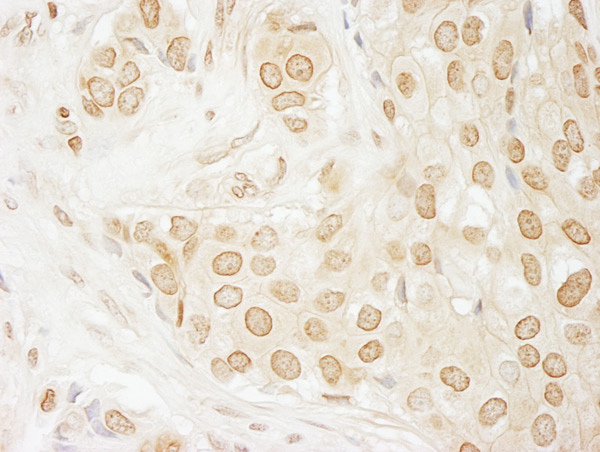 Immunohistochemistry (Formalin/PFA-fixed paraffin-embedded sections) - Anti-USP33 antibody (ab71715)