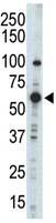 Western blot - Anti-PDPK1 antibody - N-terminal (ab71757)
