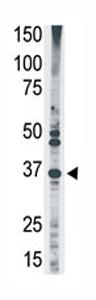 Western blot - Anti-MAGEA2 antibody - Aminoterminal end (ab71786)