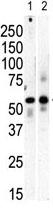 Western blot - Anti-PI 4 Kinase type 2 beta antibody - C-terminal (ab71823)