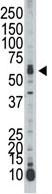 Western blot - Anti-STK39 antibody (ab71825)