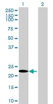 Western blot - Anti-Retinol Saturase antibody (ab71855)